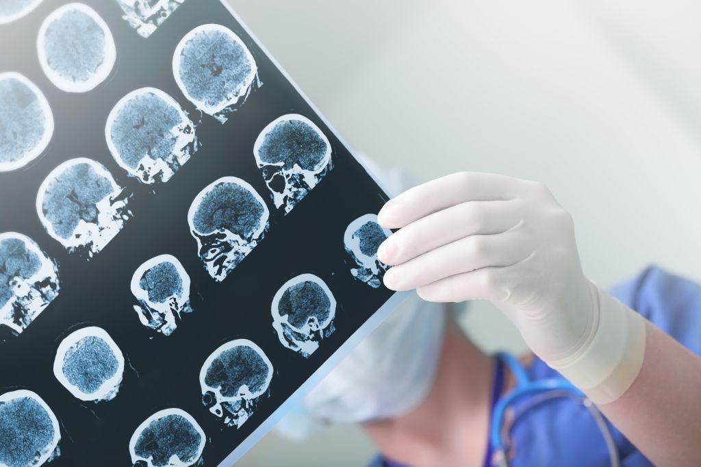 Odpravimo predsodke o epilepsiji